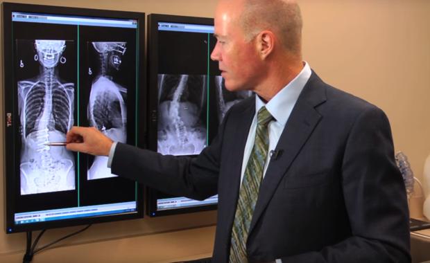 Dr. Buttermann Scoliosis Case